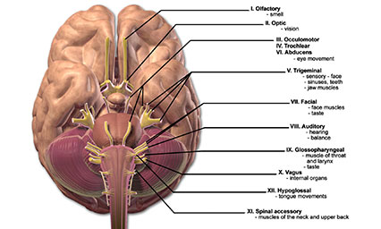 Hersenzenuw schade bij een brughoektumor