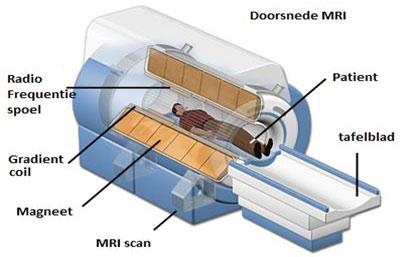 De MRI scan