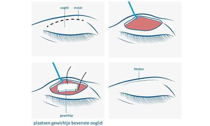 Goudstukje implantaat bij aangezichtsverlamming