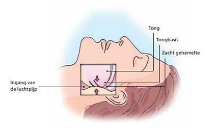 Diagnose slaapapneu