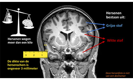 Jaarlijkse MRI-scan voor controle